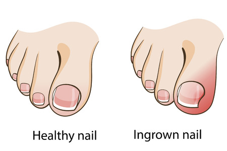 toe: Ingrown toenail
