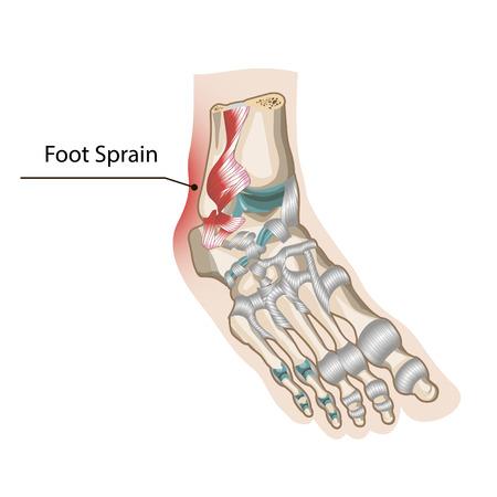 cramp: Foot Sprain Illustration