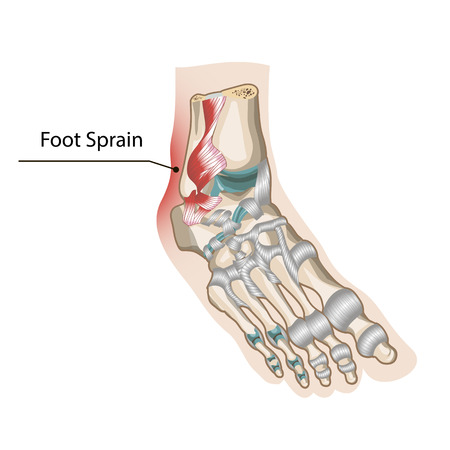 Foot Sprain Illustration
