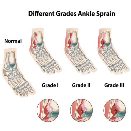 Different grades of ankle sprains Illustration