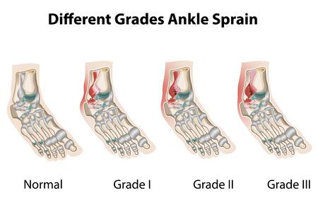 足首の捻挫の等級