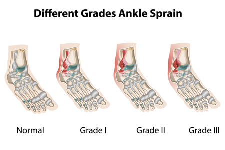 Grades of ankle sprains Vector