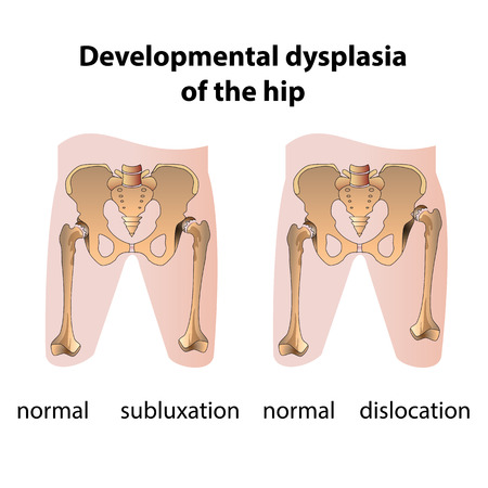 groin: Dysplasia of the Hip. Medical poster
