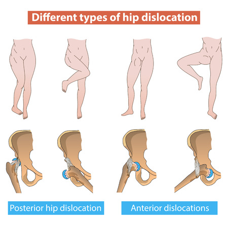 Different types of hip dislocation