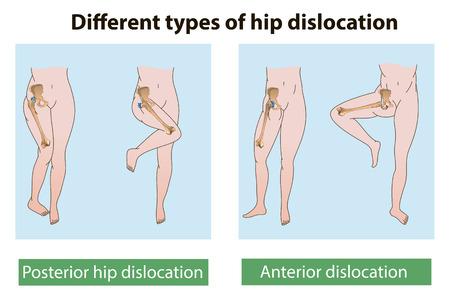 dislocation: Los diferentes tipos de luxación de cadera