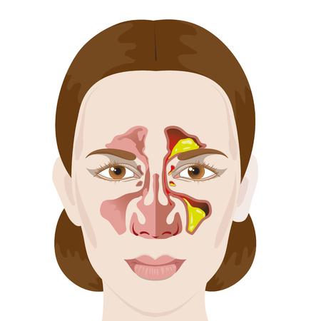 Sinusitis. Los senos paranasales saludables e inflamadas
