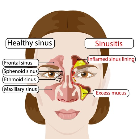 Sinusitis. Healthy and inflamed sinuses