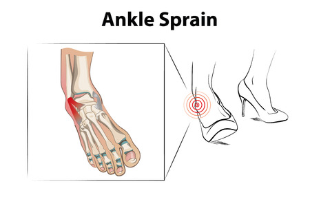 Ankle sprain injury from wearing high heels