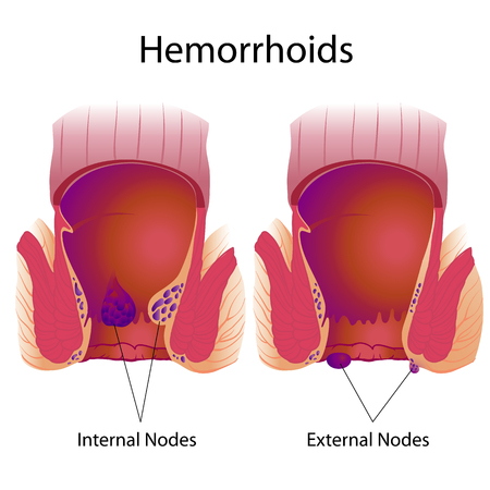 Hemorrhoids external and internal nodes Stock Illustratie