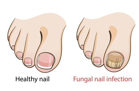 Nail fungal infection Medical poster