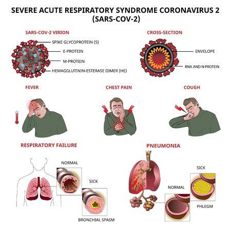 Symptômes et complications du coronavirus santé et illustration vectorielle médicale. Covid-19 Vecteurs