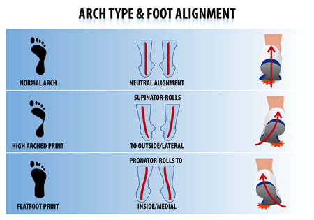 huella pie: Arco Tipo y la alineación del pie