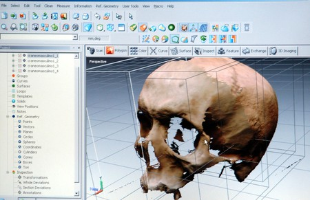 SCANNER IN 3D OR THREE DIMENSIONS OF THE DEPARTMENT OF HUMAN MORPHOLOGY OF THE FACULTY OF MEDICINE FOR GRENADA