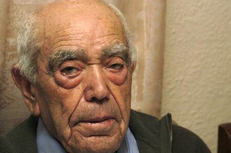 emaciated: Elder almost centenary