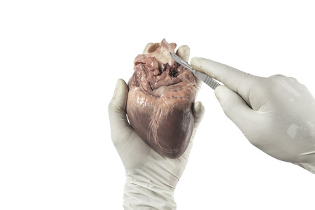 clean artery: Heart organ in hand with rubber glove prepare to cut by scalpel isolated white  background Stock Photo