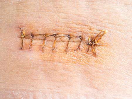 Suture wound
