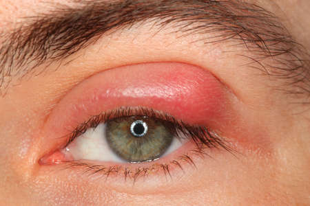 pus: illness person eye with sty and pus looking into the camera Stock Photo