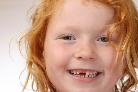 Girl with missing tooth Stock Photo