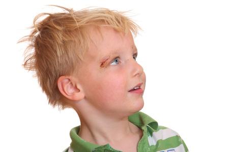Portret van een jonge jongen met een schrapen in de buurt van zijn oog