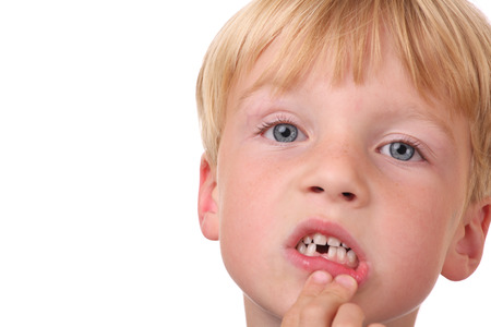 Closeup of little boy with missing teeth Stock Photo