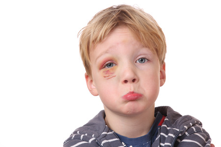 Portrait of a young boy with black eye on white background photo