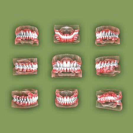 foreshortening: Foreshortening teeth.