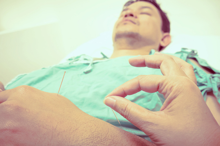 yesteryear: Vintage style photo of selective focused asian man is receiving Acupuncture treatment Stock Photo