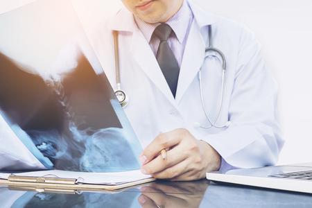 doctor examine: Doctor examine x-ray film over white background Stock Photo