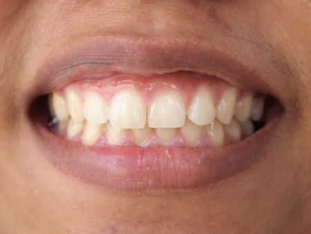 Diastema entre los incisivos superiores es una caracter�stica normal photo