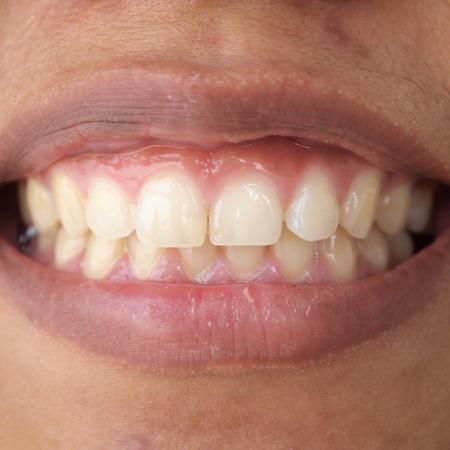 Diastema between the upper incisors is a normal feature Standard-Bild