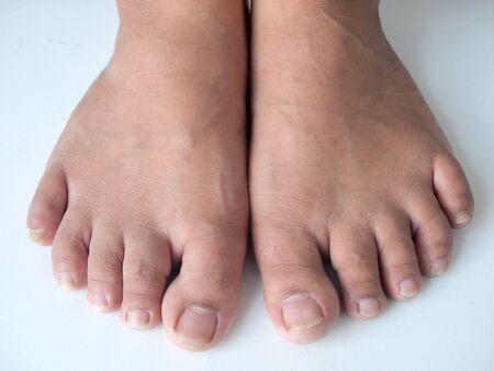shoeless: pair of feet Stock Photo