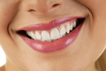 Smiling woman mouth with great white teeth Stock Photo - 3488681