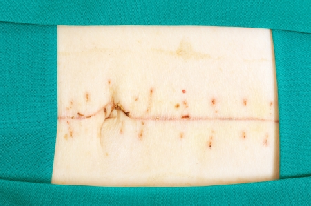 Closeup image of scar over abdomen after surgery Stock Photo - 13715220