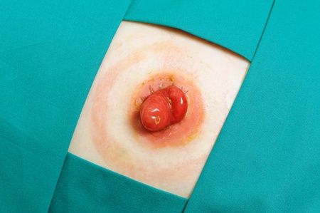 stomy: Patient with colostomy after cancer surgery, closeup