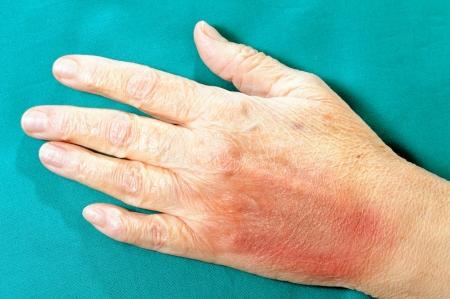 hematoma: Closeup image of  human hand after physical violence