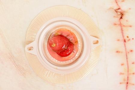stoma: Paziente con colostomia dopo l'intervento chirurgico del cancro, closeup