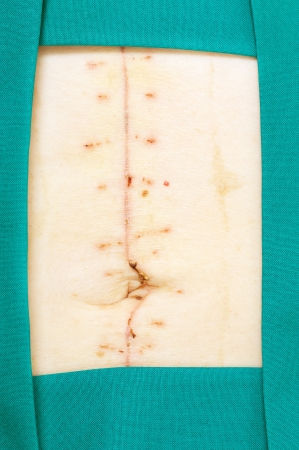 flesh surgery: Closeup image of scar over abdomen after surgery