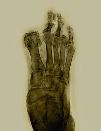toe amputation radiography