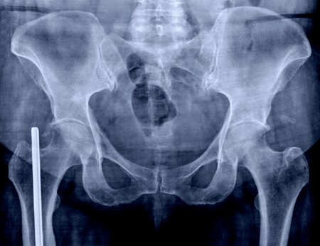 radiography hip fracture