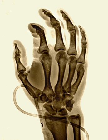 X-ray of the bones of the hand Stock Photo