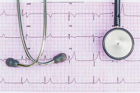 Stethoscoop liggend op ECG-diagram