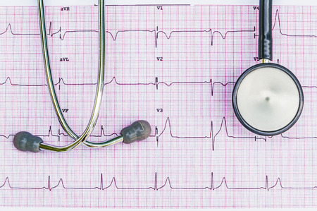 Stethoscope lying on ECG diagram Stock Photo