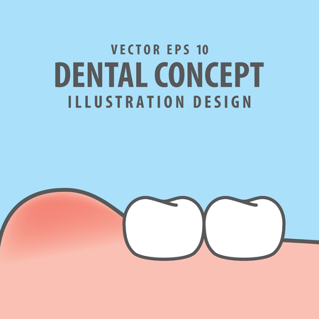 Swollen gums with teeth illustration vector on blue background. Dental concept.