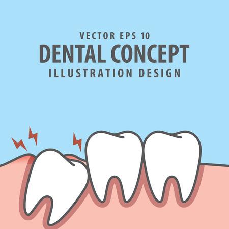 Impacted tooth inside under inflammation gum illustration vector on blue background. Dental concept.