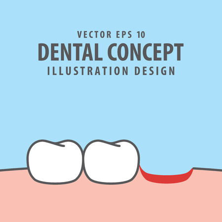 Fallen tooth illustration vector on blue background. Dental concept.