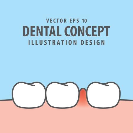 Swollen inflammation gums with teeth illustration vector on blue background. Dental concept. Illustration