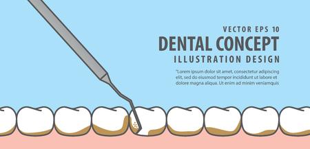 Banner Scaling teeth illustration vector on blue background. Dental concept.