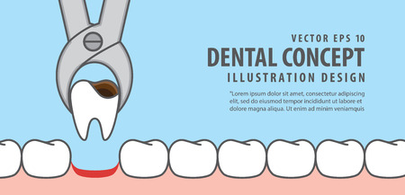 Banner Tooth removal illustration vector on blue background. Dental concept. Vettoriali