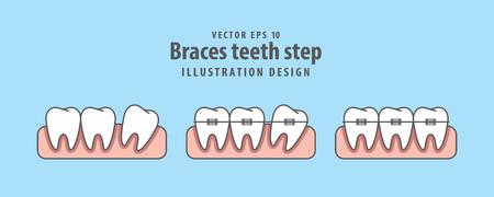 Braces teeth step illustration vector on blue background. Dental concept.
