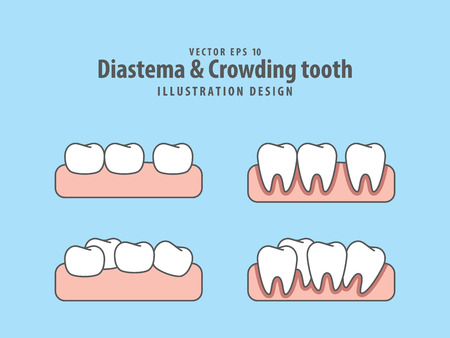 Diastema Illustration